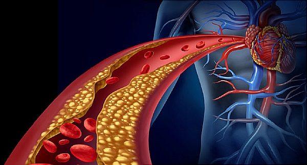 LDL – Лош холестерол
